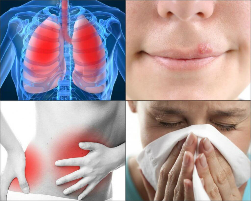 Viral and bacterial infections