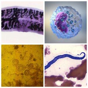 Parasites and protozoa